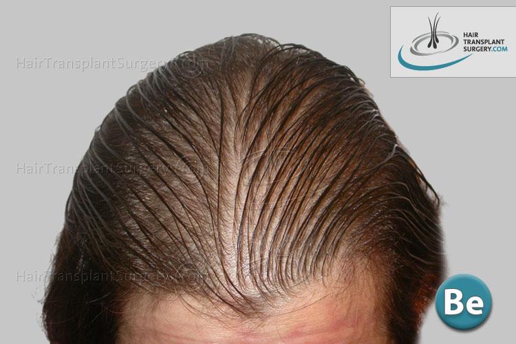 galerie photo de greffe de cheveux femmes hair transplant surgery. Black Bedroom Furniture Sets. Home Design Ideas